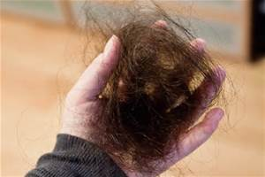 Key Factors in Hair Loss